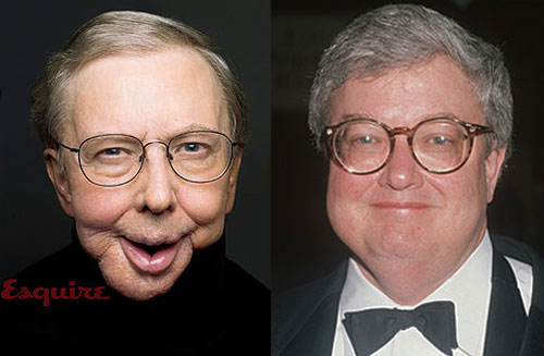 Ebert-Before-and-After