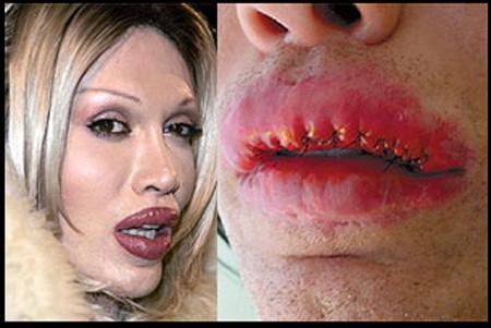 pete-burns-lips